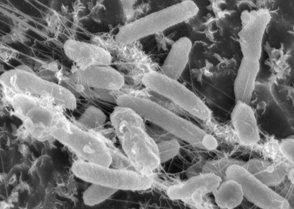 Bacterie I Sakaiensis